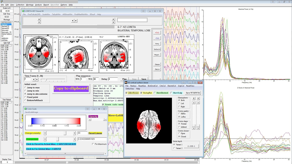 78209 March 2016 Wellness SAMPLE QEEG SPECTRAL ANALYSIS
